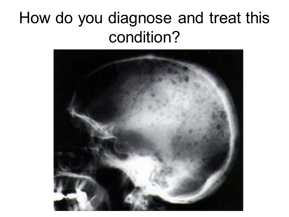 How do you diagnose and treat this condition?