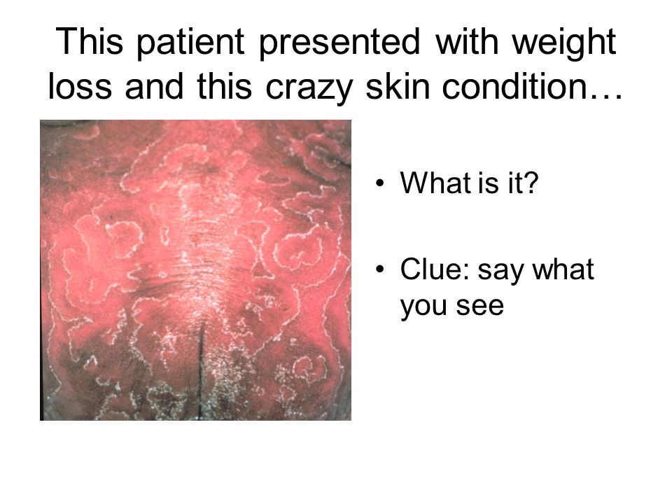 This patient presented with weight loss and this crazy skin condition… What is it? Clue: say what you see