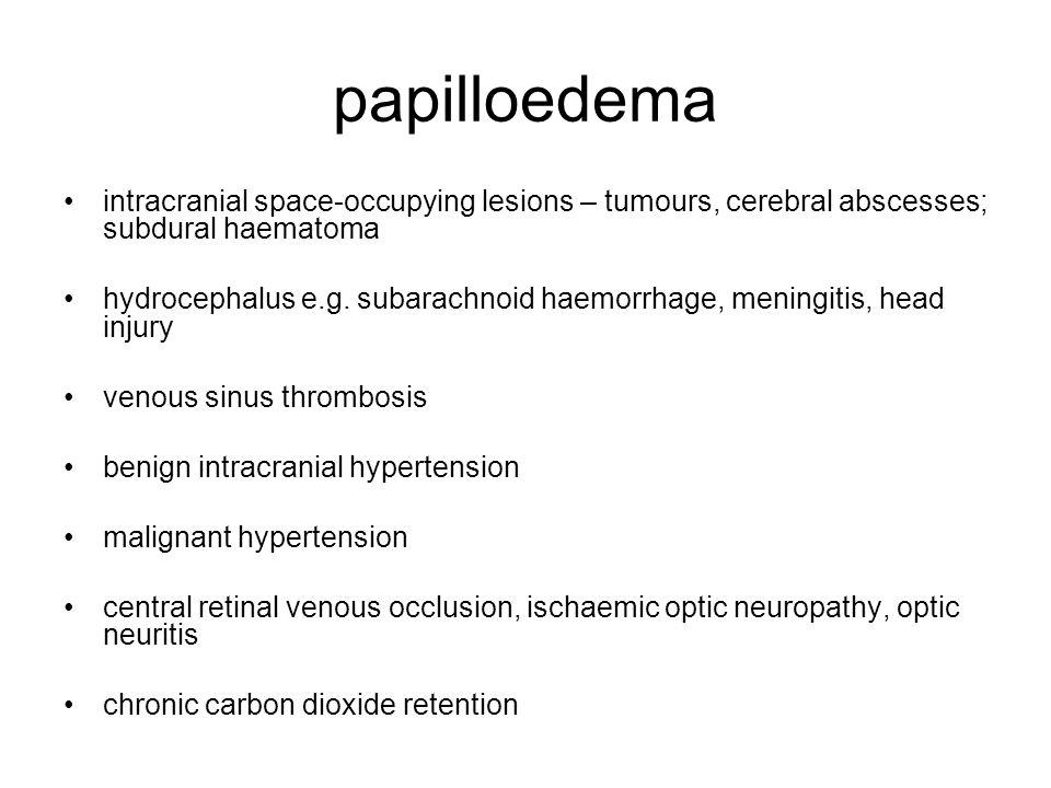 papilloedema intracranial space-occupying lesions – tumours, cerebral abscesses; subdural haematoma hydrocephalus e.g. subarachnoid haemorrhage, menin