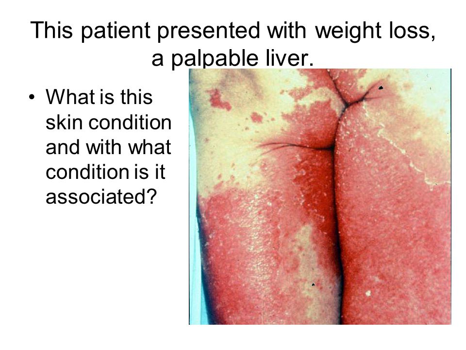 This patient presented with weight loss, a palpable liver. What is this skin condition and with what condition is it associated?