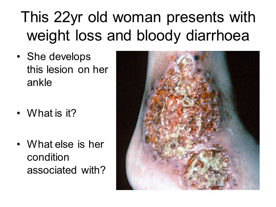 This 22yr old woman presents with weight loss and bloody diarrhoea She develops this lesion on her ankle What is it? What else is her condition associ