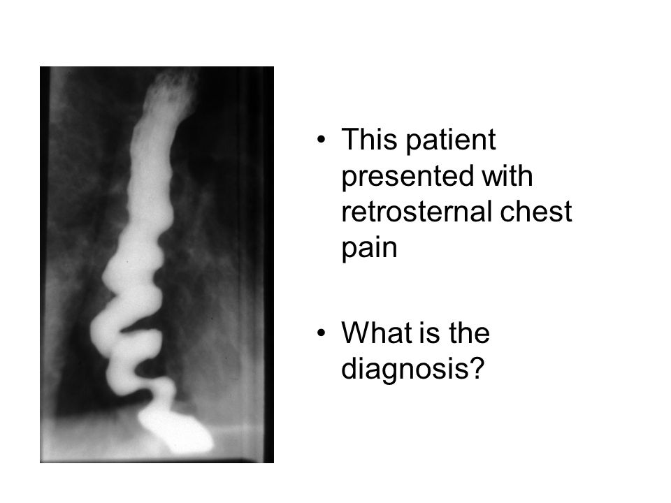 This patient presented with retrosternal chest pain What is the diagnosis?
