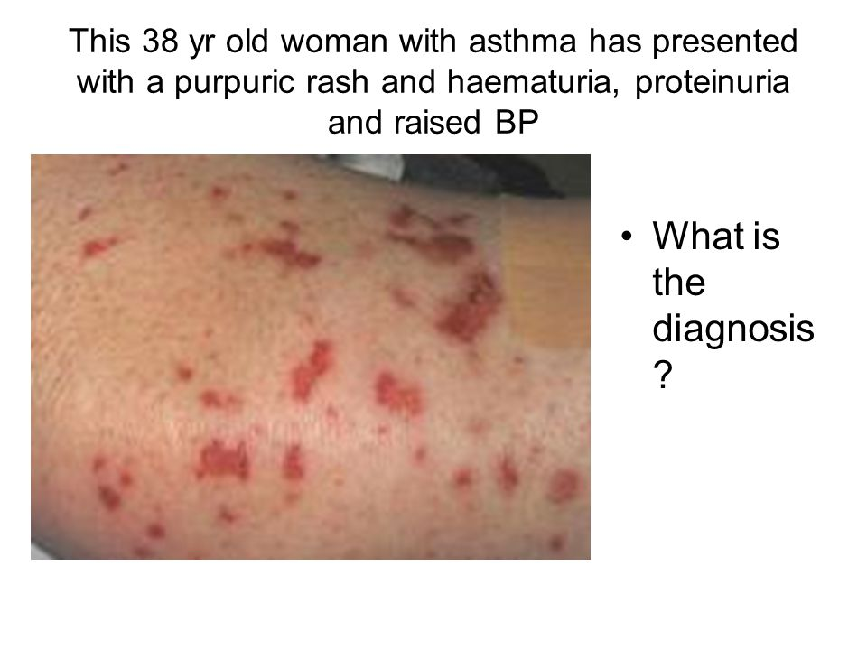This 38 yr old woman with asthma has presented with a purpuric rash and haematuria, proteinuria and raised BP What is the diagnosis ?