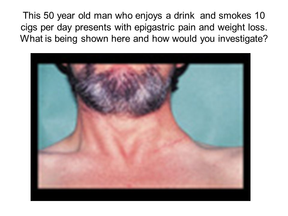 This 50 year old man who enjoys a drink and smokes 10 cigs per day presents with epigastric pain and weight loss. What is being shown here and how wou