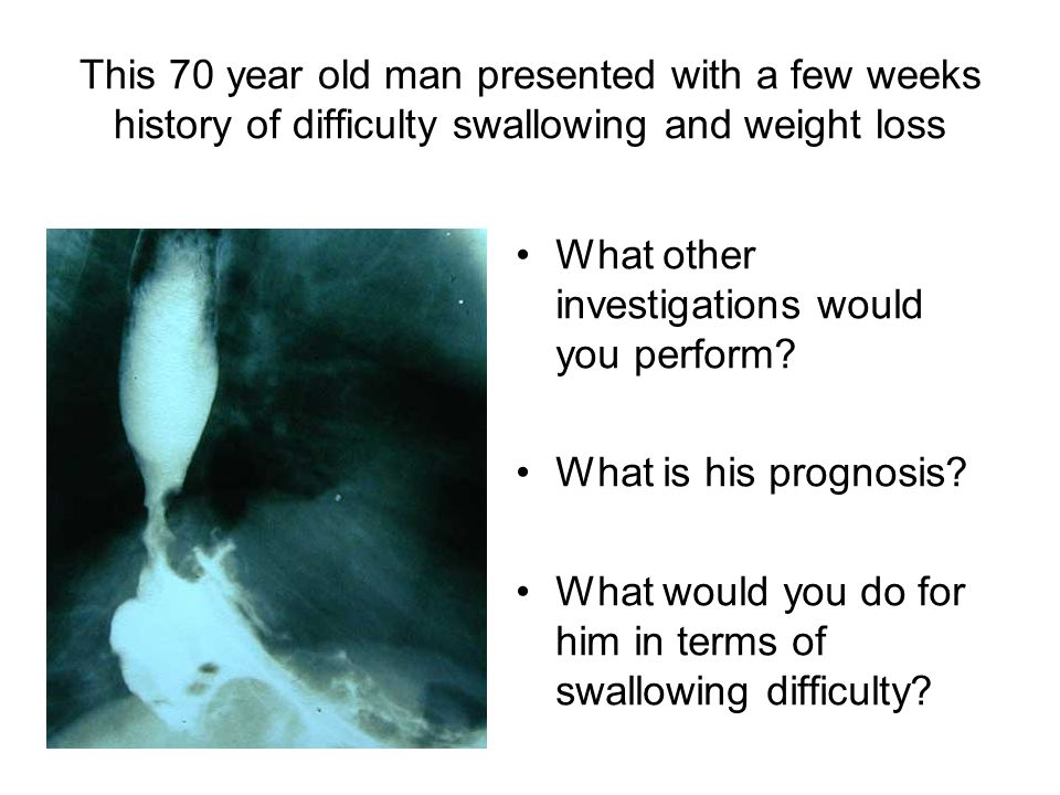 This 70 year old man presented with a few weeks history of difficulty swallowing and weight loss What other investigations would you perform? What is