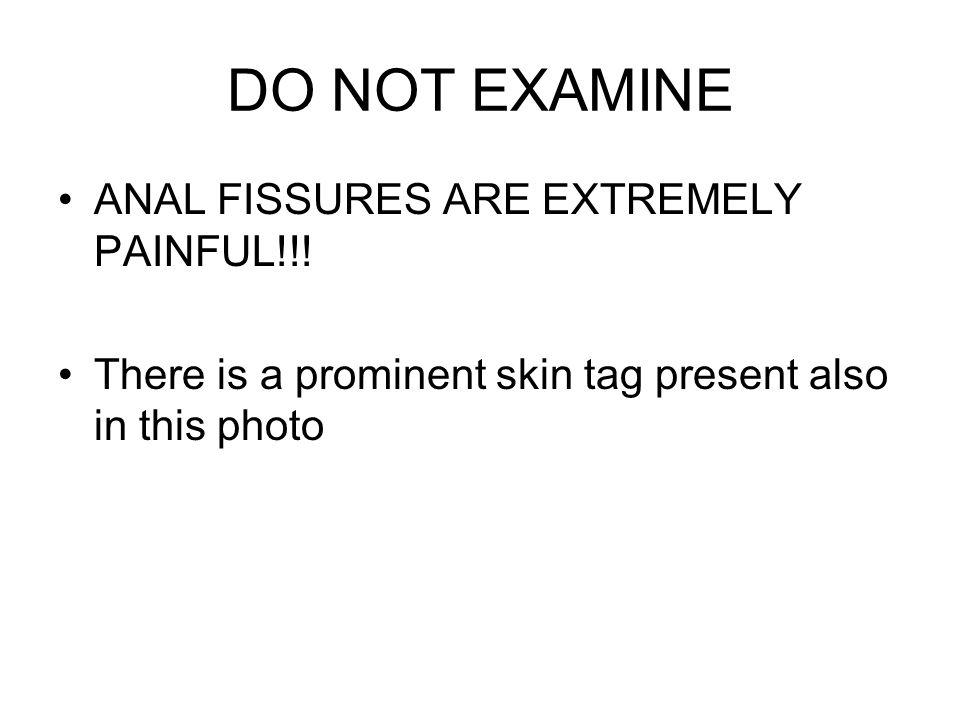 DO NOT EXAMINE ANAL FISSURES ARE EXTREMELY PAINFUL!!.