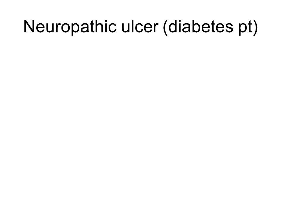 Neuropathic ulcer (diabetes pt)
