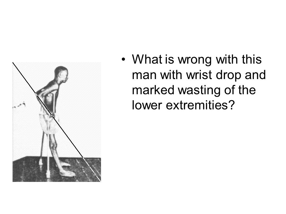 What is wrong with this man with wrist drop and marked wasting of the lower extremities?