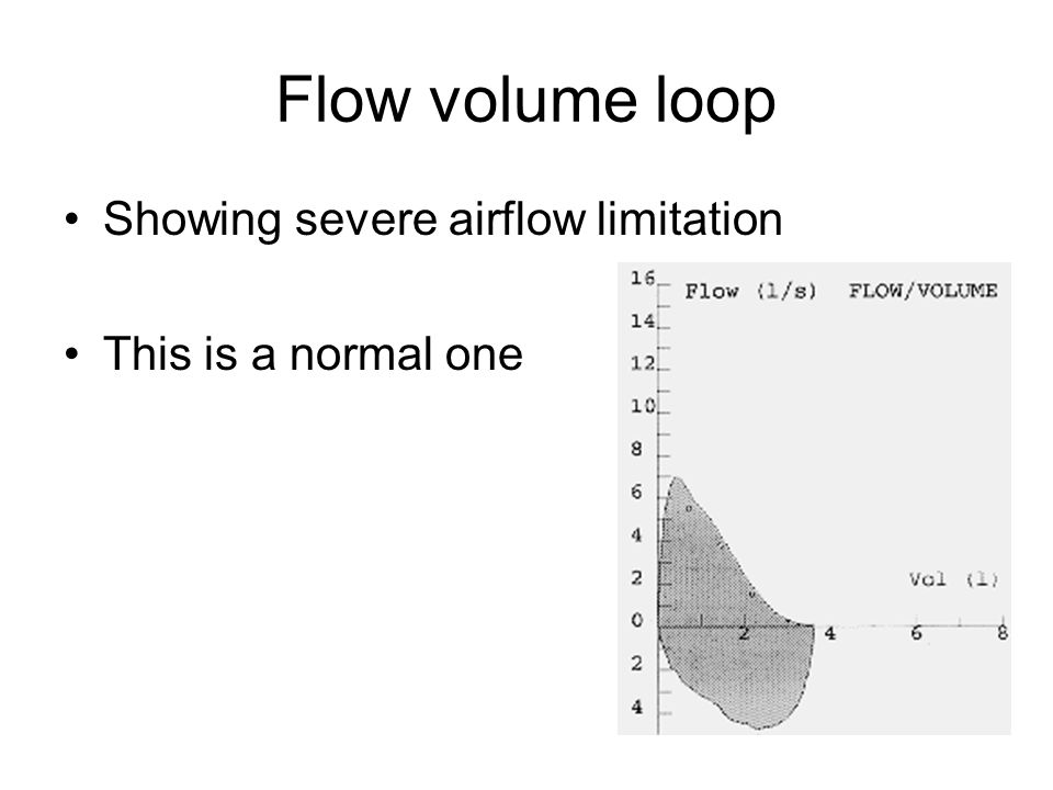 Flow volume loop Showing severe airflow limitation This is a normal one