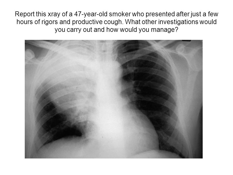 Report this xray of a 47-year-old smoker who presented after just a few hours of rigors and productive cough. What other investigations would you carr