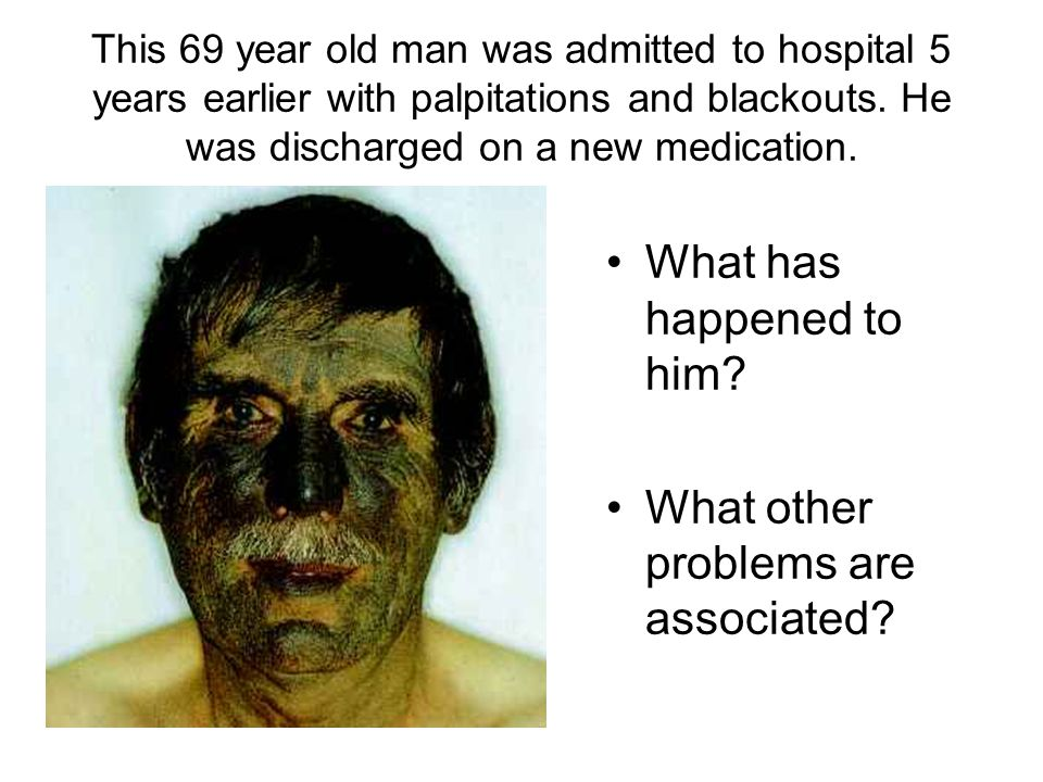 This 69 year old man was admitted to hospital 5 years earlier with palpitations and blackouts.
