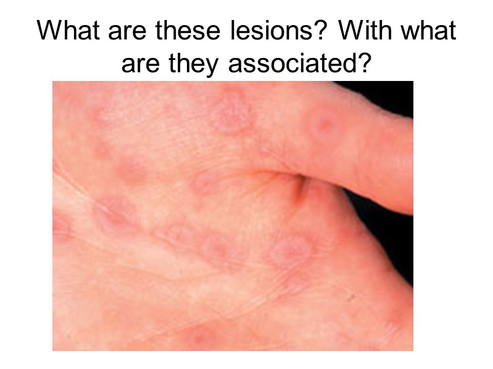 What are these lesions? With what are they associated?