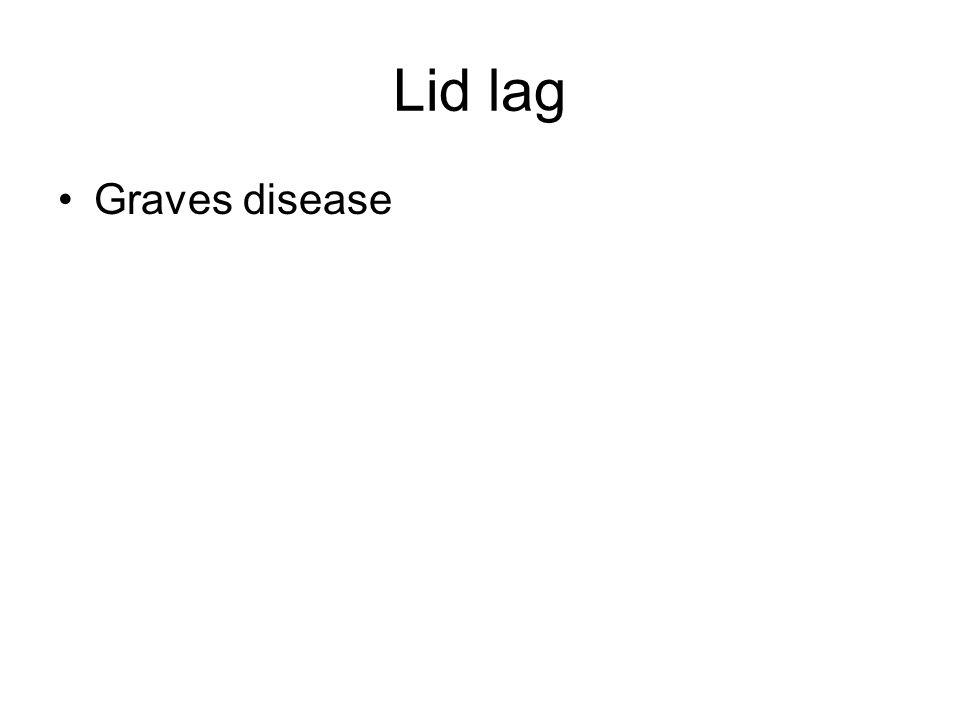 Lid lag Graves disease