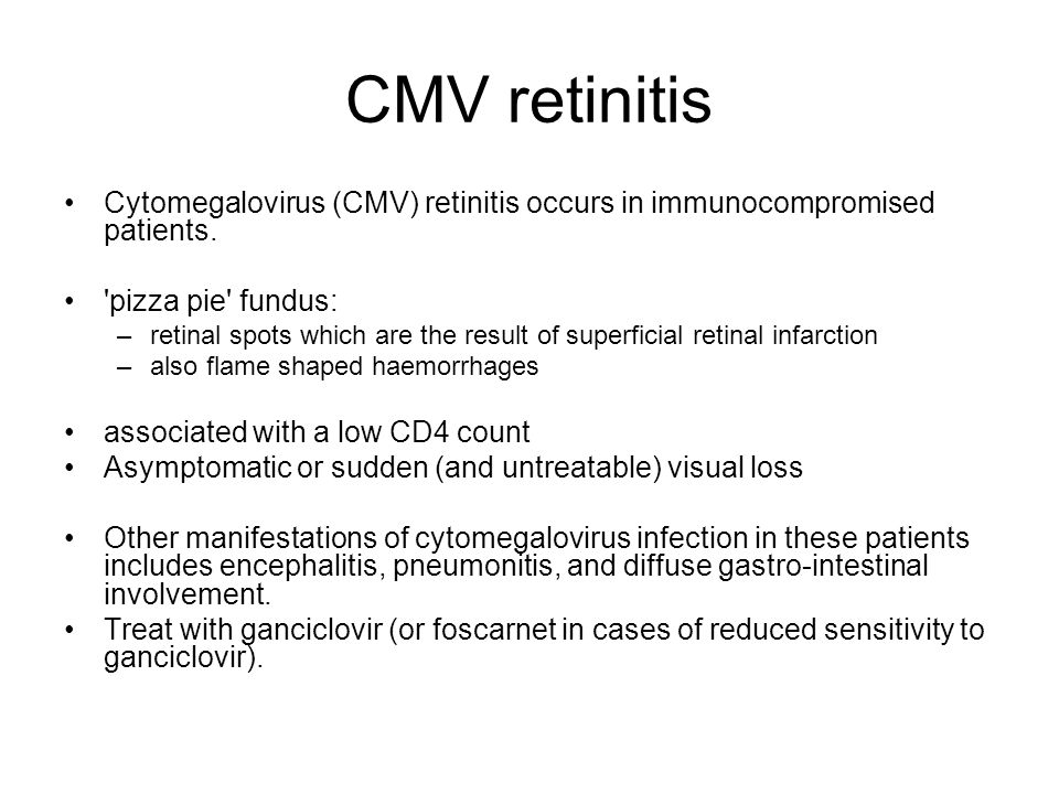 CMV retinitis Cytomegalovirus (CMV) retinitis occurs in immunocompromised patients. 'pizza pie' fundus: –retinal spots which are the result of superfi