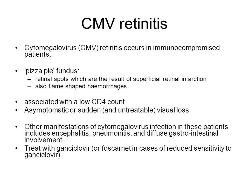 CMV retinitis Cytomegalovirus (CMV) retinitis occurs in immunocompromised patients.