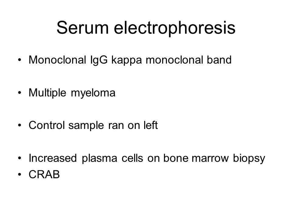 Serum electrophoresis Monoclonal IgG kappa monoclonal band Multiple myeloma Control sample ran on left Increased plasma cells on bone marrow biopsy CRAB
