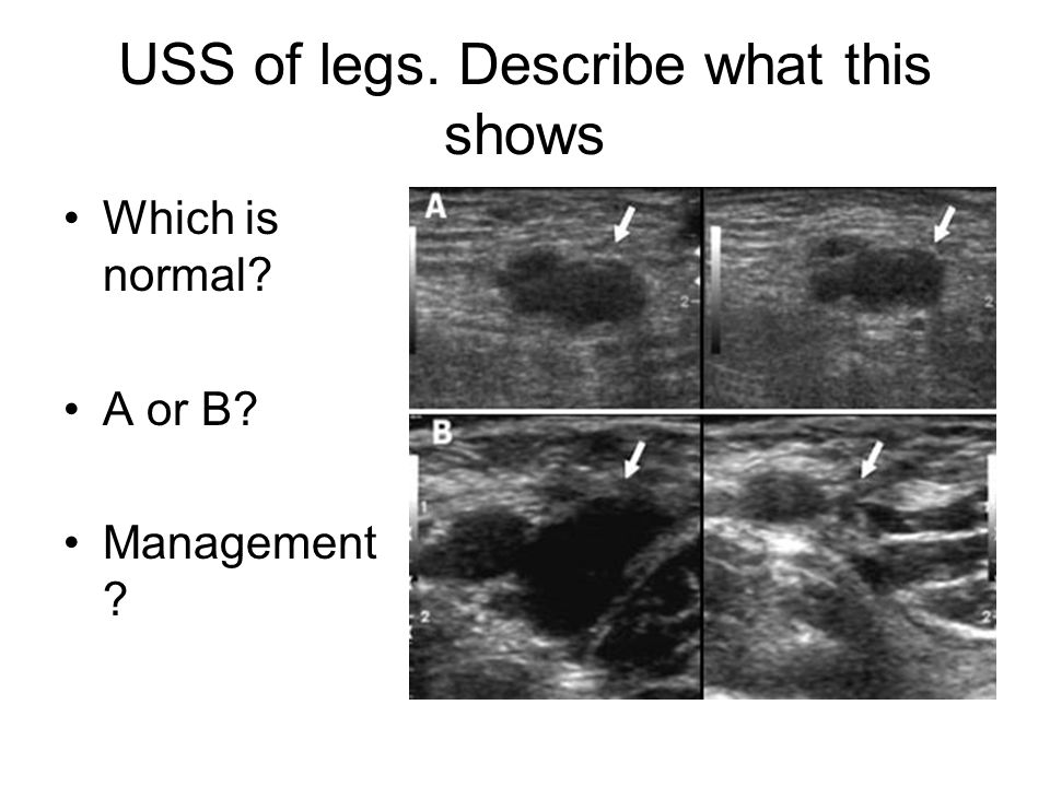 USS of legs. Describe what this shows Which is normal? A or B? Management ?