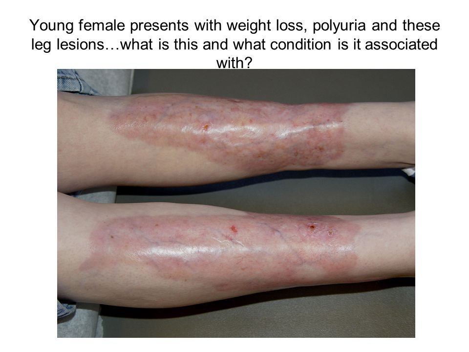 Young female presents with weight loss, polyuria and these leg lesions…what is this and what condition is it associated with?