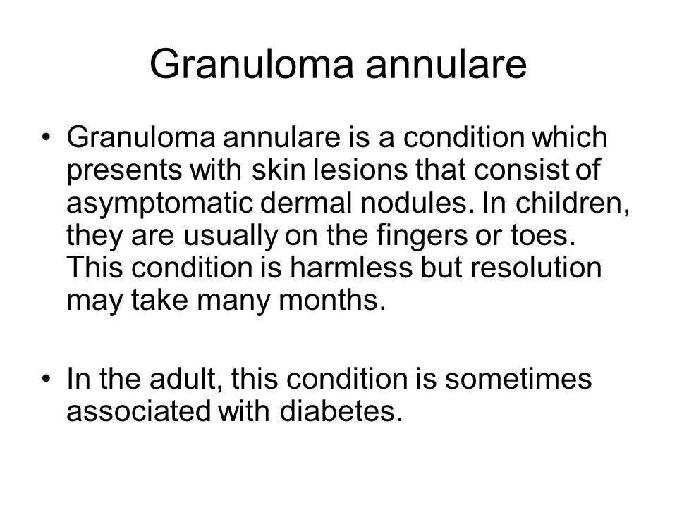 Granuloma annulare Granuloma annulare is a condition which presents with skin lesions that consist of asymptomatic dermal nodules.