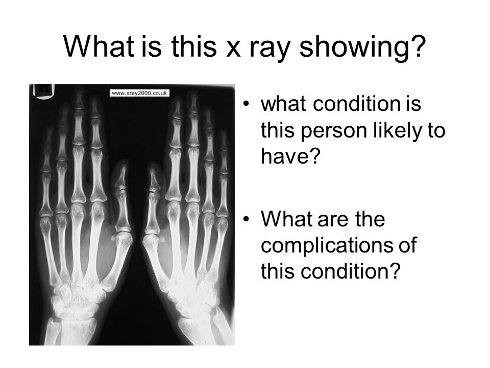 What is this x ray showing? what condition is this person likely to have? What are the complications of this condition?