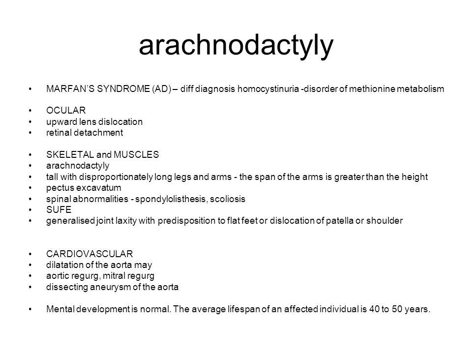 arachnodactyly MARFAN'S SYNDROME (AD) – diff diagnosis homocystinuria -disorder of methionine metabolism OCULAR upward lens dislocation retinal detach