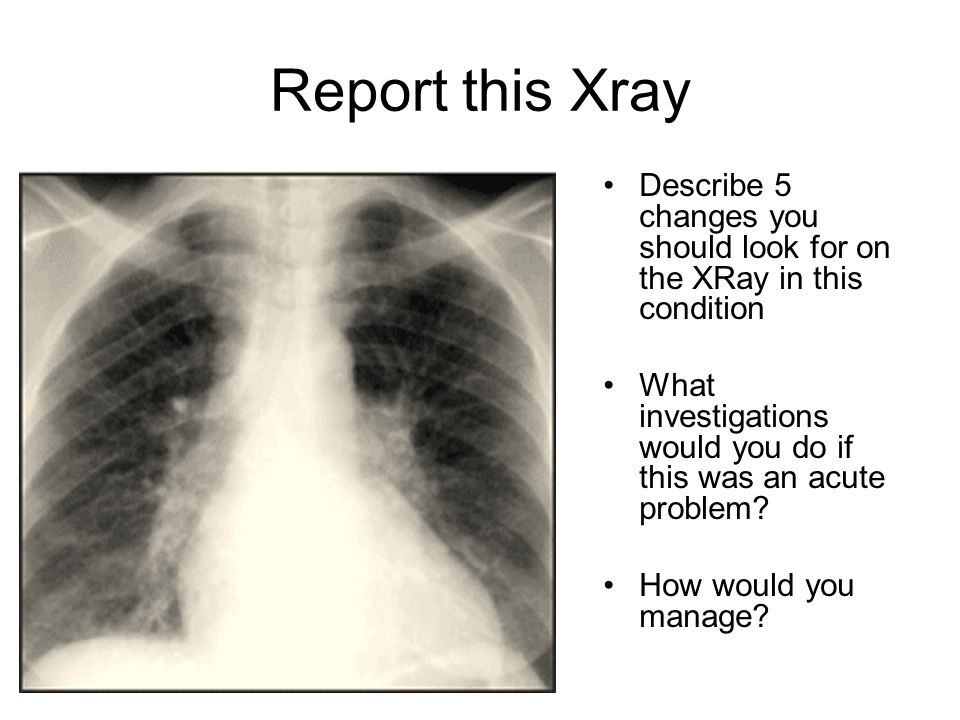 Report this Xray Describe 5 changes you should look for on the XRay in this condition What investigations would you do if this was an acute problem.