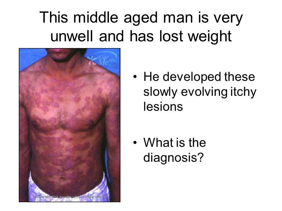 This middle aged man is very unwell and has lost weight He developed these slowly evolving itchy lesions What is the diagnosis?