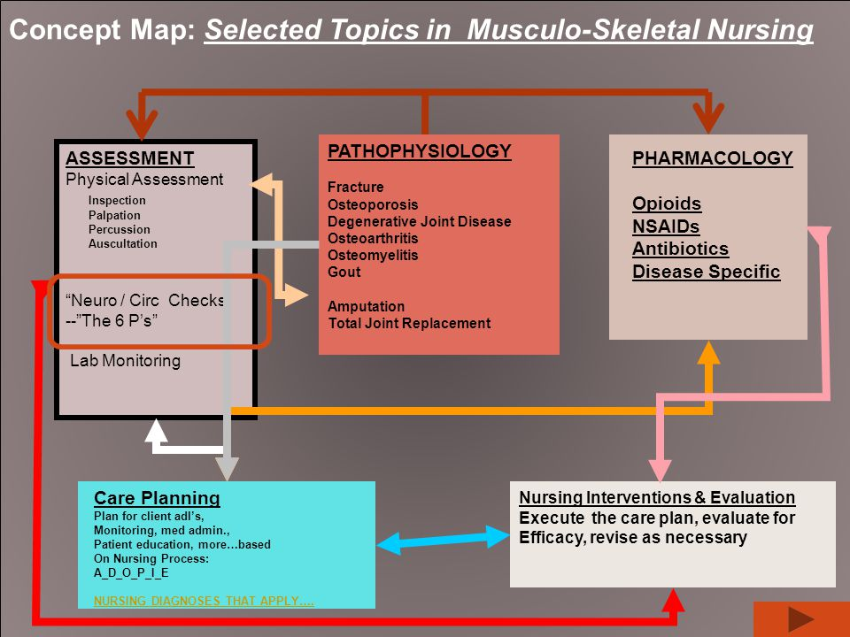Concept Map: Selected Topics in Musculo-Skeletal Nursing PATHOPHYSIOLOGY Fracture Osteoporosis Degenerative Joint Disease Osteoarthritis Osteomyelitis