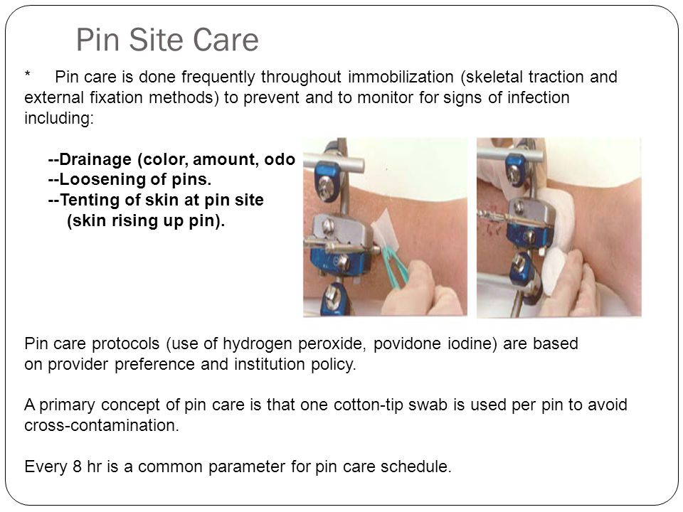 Pin Site Care * Pin care is done frequently throughout immobilization (skeletal traction and external fixation methods) to prevent and to monitor for