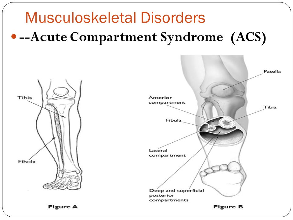 Musculoskeletal Disorders --Acute Compartment Syndrome (ACS)