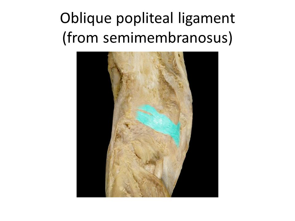 Oblique popliteal ligament (from semimembranosus)