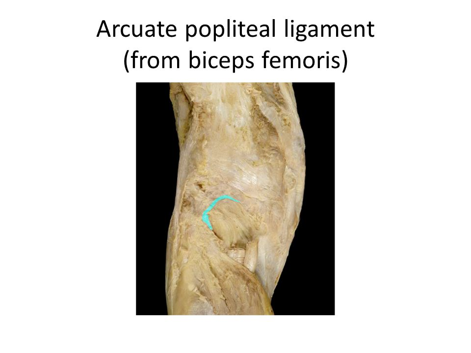 Arcuate popliteal ligament (from biceps femoris)