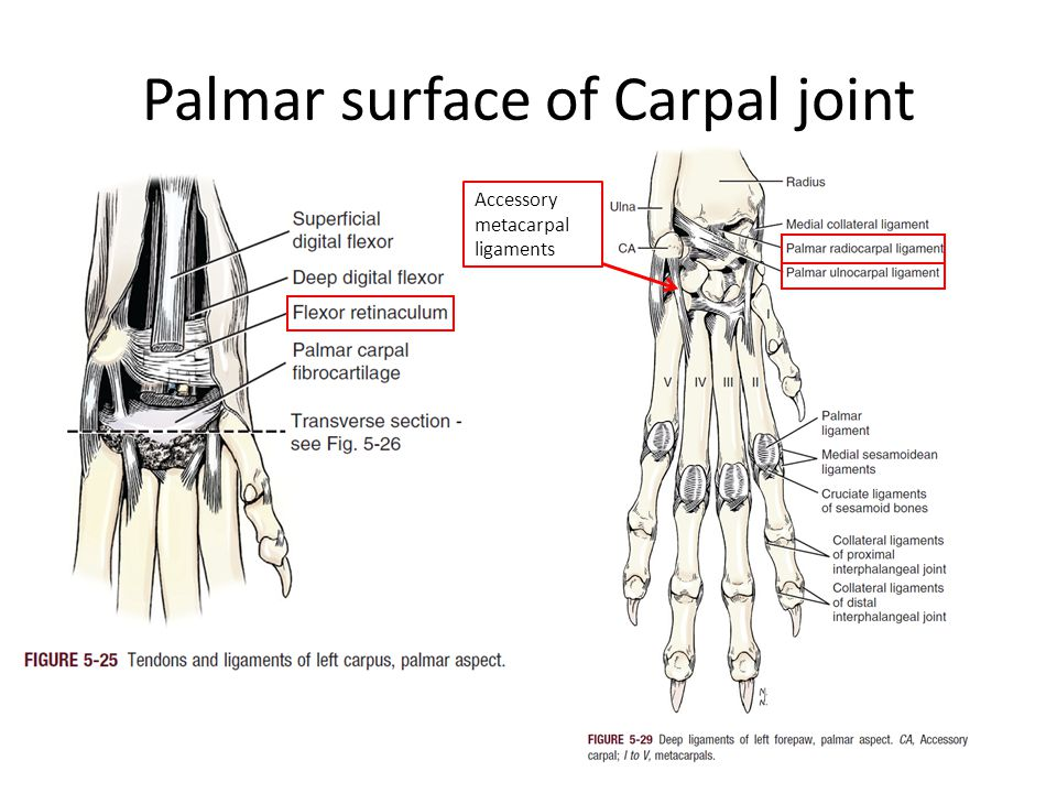 Palmar surface of Carpal joint Accessory metacarpal ligaments