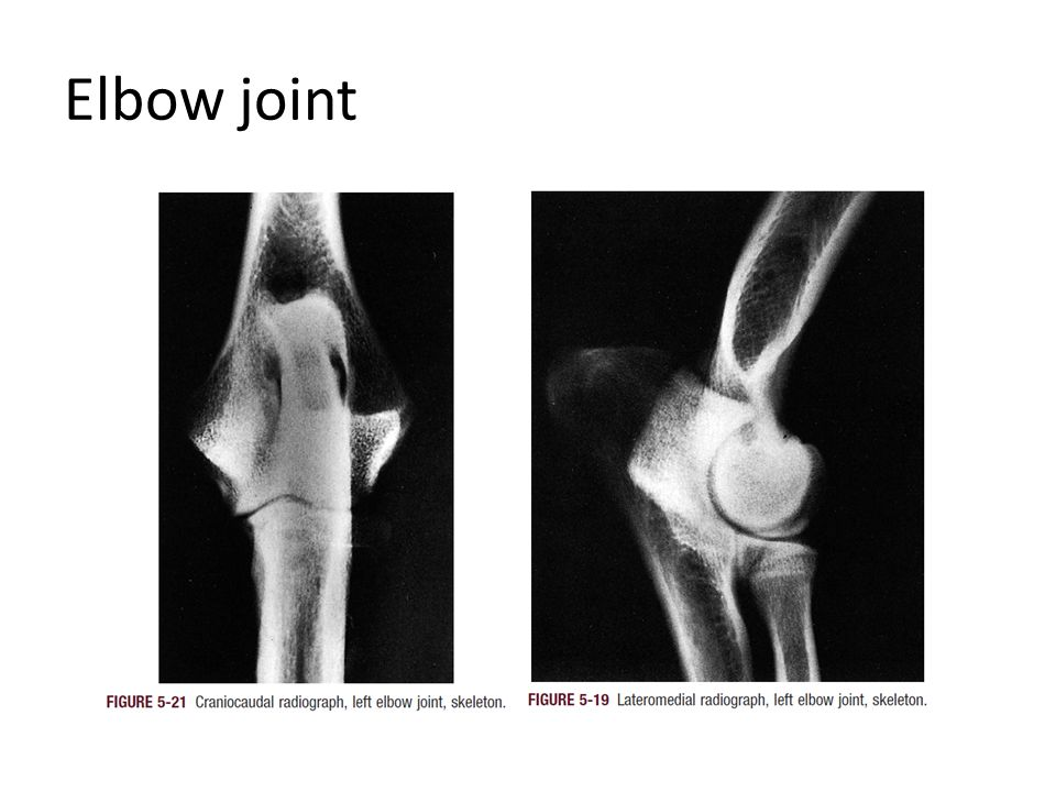 Synovial space of Elbow joint
