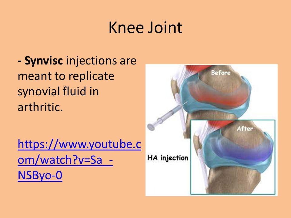 Bursa Sacs Bursa Sacs: Fluid-filled sacs located in joints, usually where tendons insert into bones.