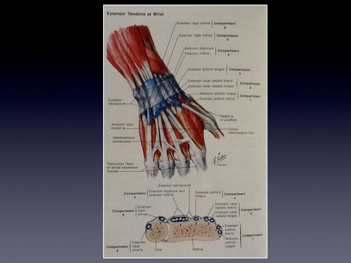 de Quervain Tenosynovitis Entrapment of APL & EPB in the 1st dorsal compartment of the wrist Cause: Repeated thumb abduction with simultaneous wrist ulnar deviation Symptoms: Radial wrist pain aggravated by thumb movement 6:1 women; Age group 40-60