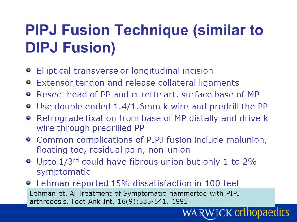 PIPJ Fusion Technique (similar to DIPJ Fusion) Elliptical transverse or longitudinal incision Extensor tendon and release collateral ligaments Resect head of PP and curette art.