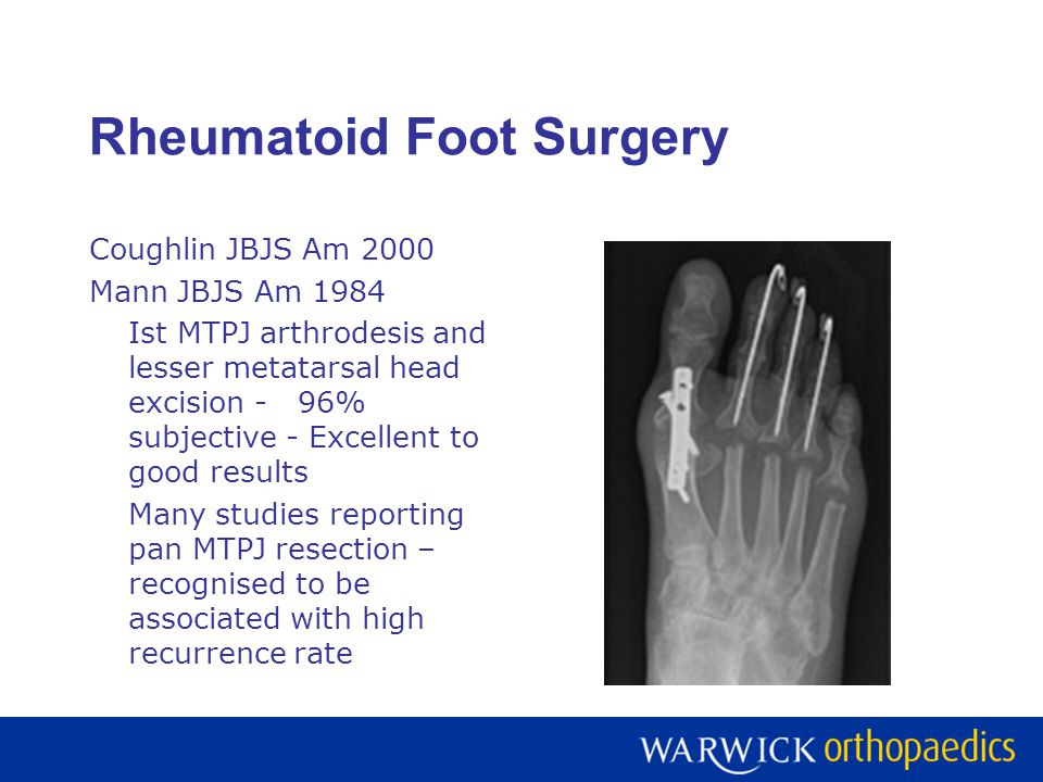 Rheumatoid Foot Surgery Coughlin JBJS Am 2000 Mann JBJS Am 1984 Ist MTPJ arthrodesis and lesser metatarsal head excision -96% subjective - Excellent to good results Many studies reporting pan MTPJ resection – recognised to be associated with high recurrence rate