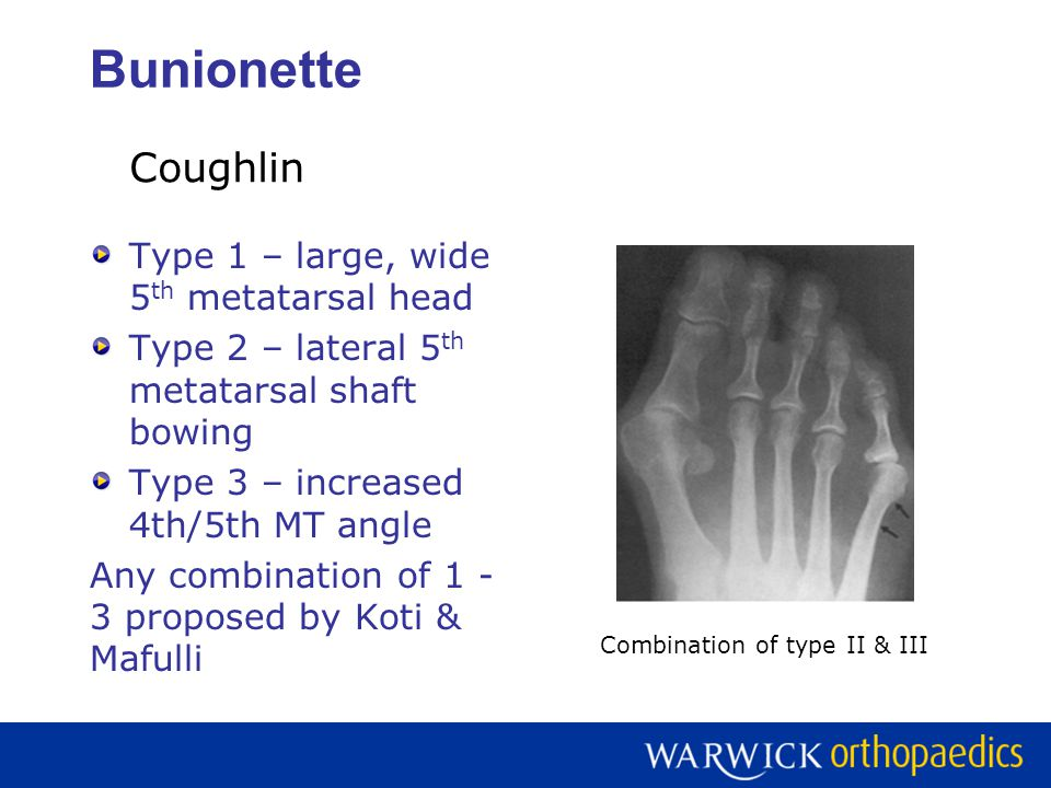 Bunionette Type 1 – large, wide 5 th metatarsal head Type 2 – lateral 5 th metatarsal shaft bowing Type 3 – increased 4th/5th MT angle Any combination of 1 - 3 proposed by Koti & Mafulli Coughlin Combination of type II & III