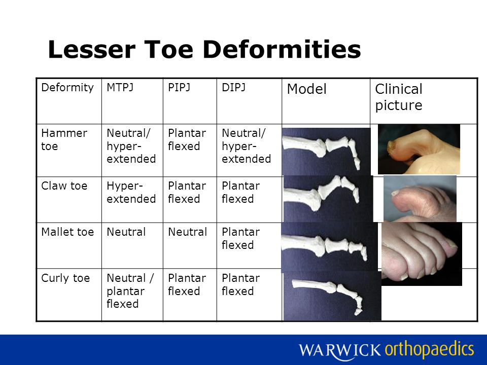 Lesser Toe Deformities DeformityMTPJPIPJDIPJ ModelClinical picture Hammer toe Neutral/ hyper- extended Plantar flexed Neutral/ hyper- extended Claw toeHyper- extended Plantar flexed Mallet toeNeutral Plantar flexed Curly toeNeutral / plantar flexed Plantar flexed