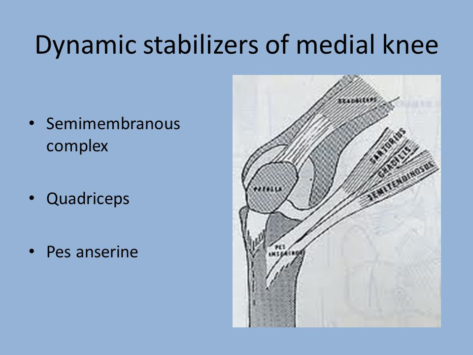Dynamic stabilizers of medial knee Semimembranous complex Quadriceps Pes anserine