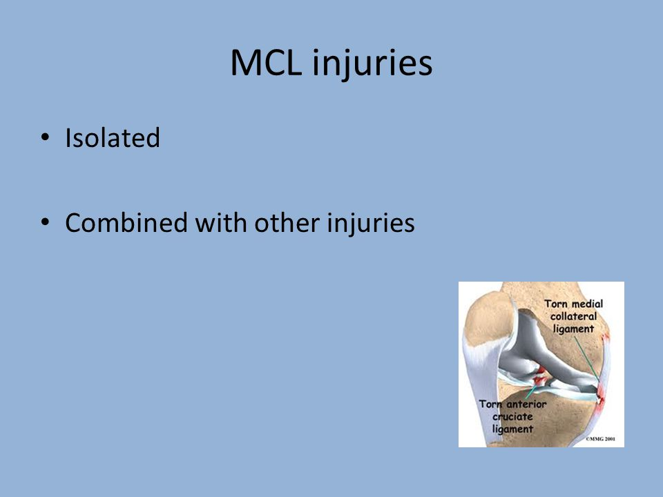 MCL injuries Isolated Combined with other injuries