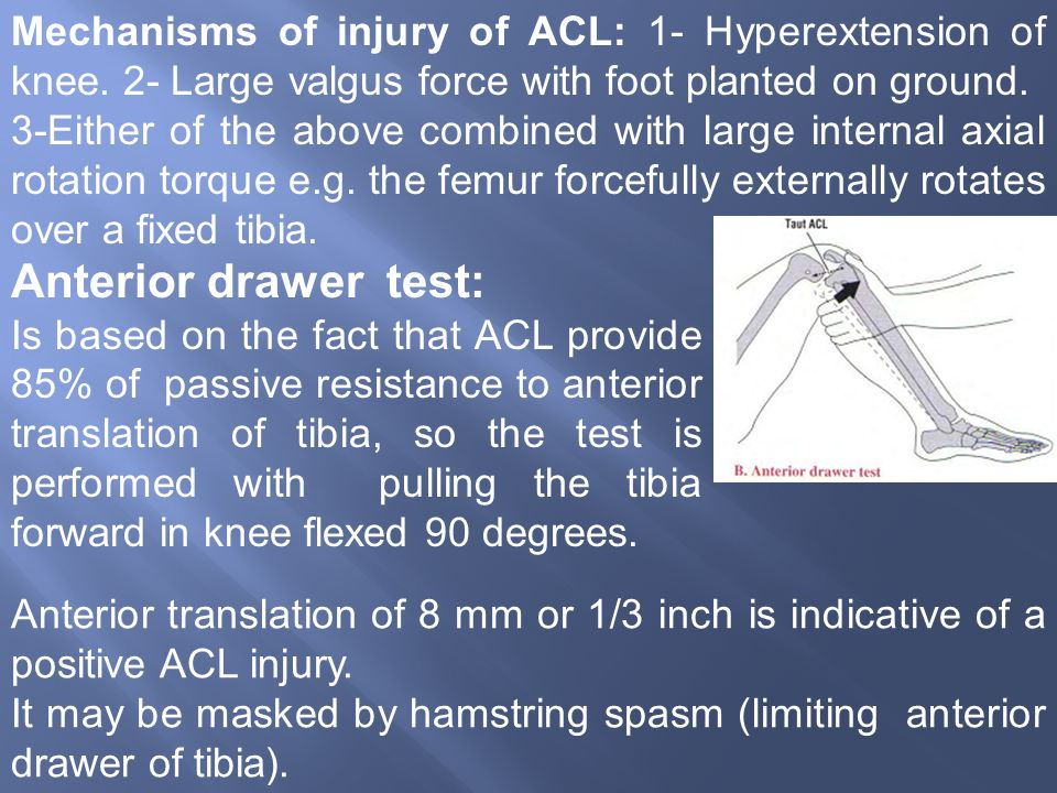 Mechanisms of injury of ACL: 1- Hyperextension of knee.