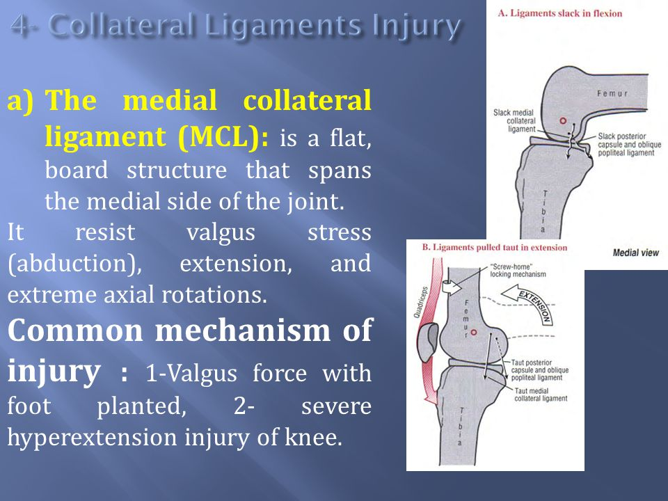 a)The medial collateral ligament (MCL): is a flat, board structure that spans the medial side of the joint.