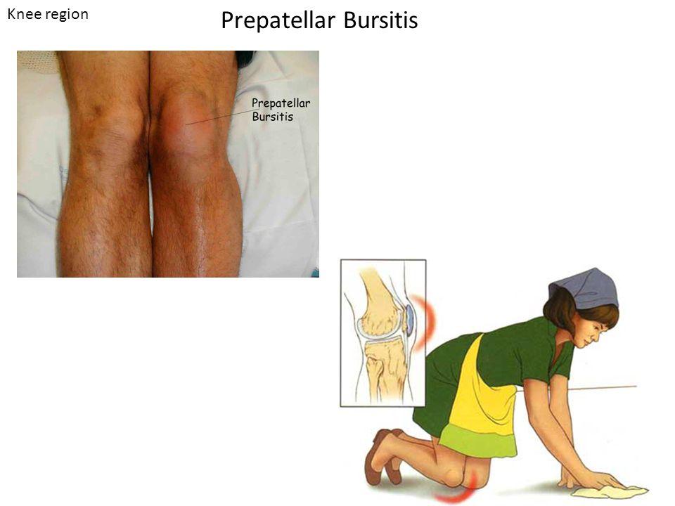Prepatellar Bursitis Knee region