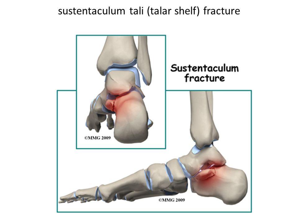sustentaculum tali (talar shelf) fracture