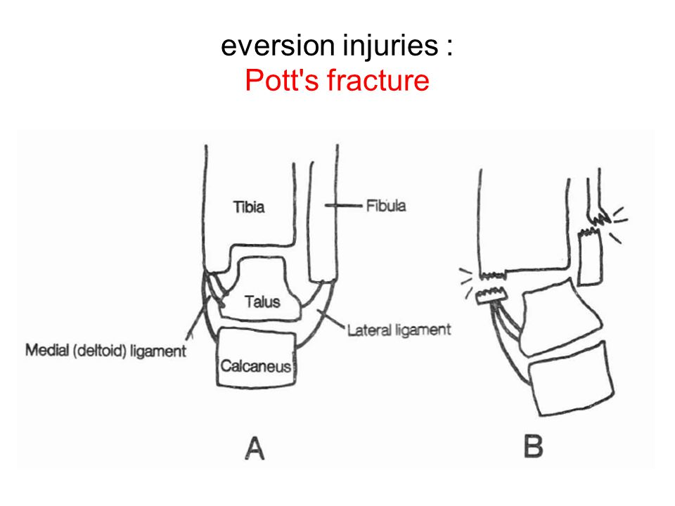 eversion injuries : Pott's fracture