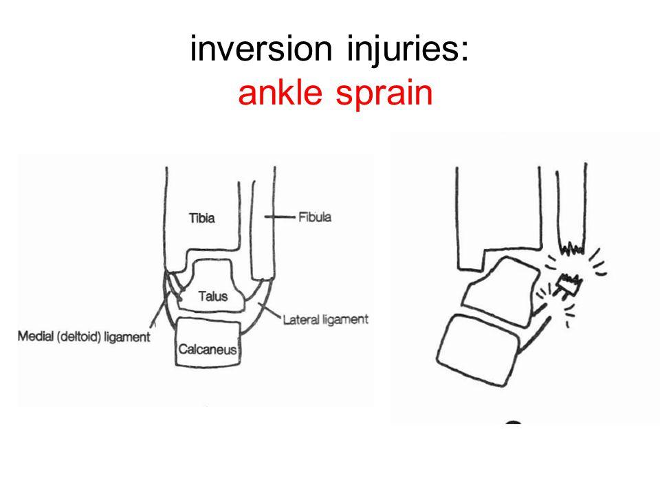 inversion injuries: ankle sprain