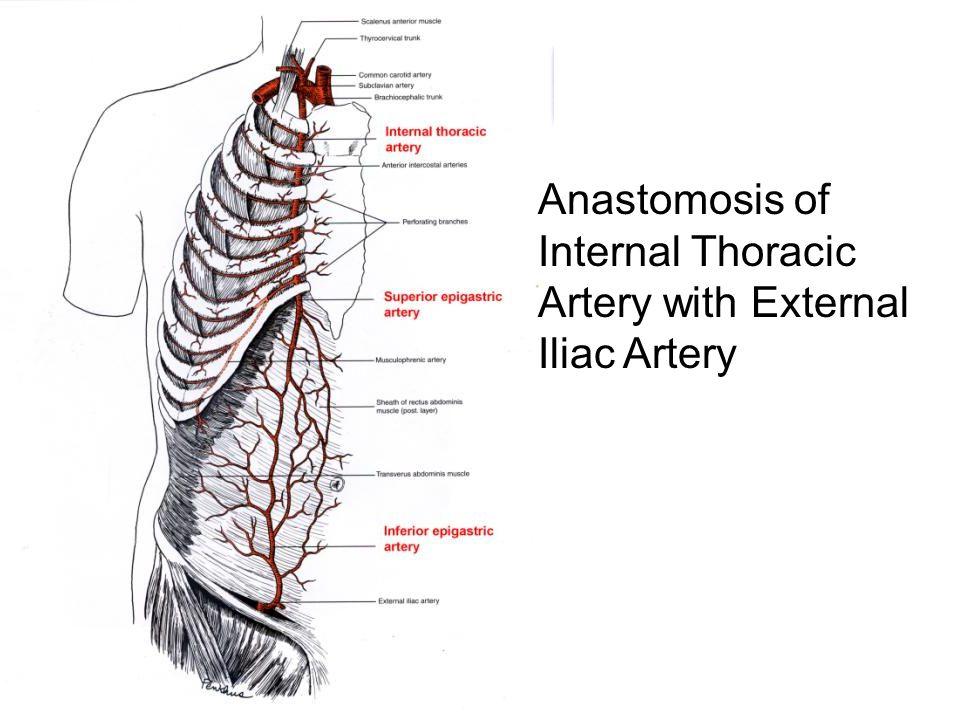 Anastomosis of Internal Thoracic Artery with External Iliac Artery