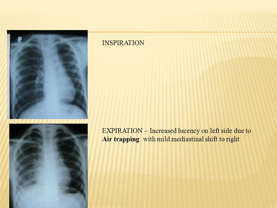 INSPIRATION EXPIRATION – Increased lucency on left side due to Air trapping with mild mediastinal shift to right